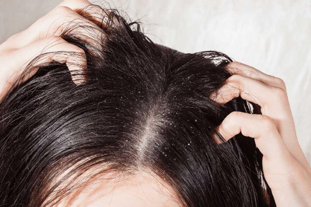 علل ایجاد شوره سر و راههای درمان این اختلال مزاحم
